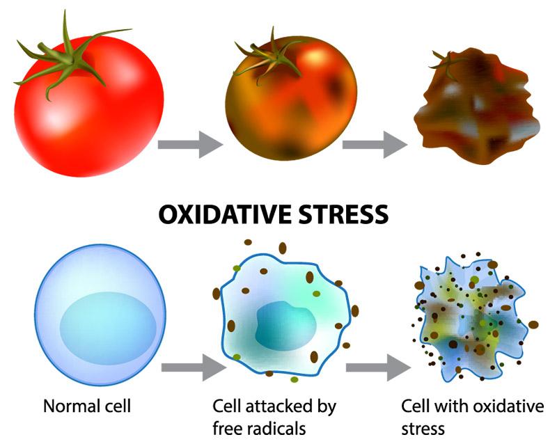 Oxidative Stress Infographic